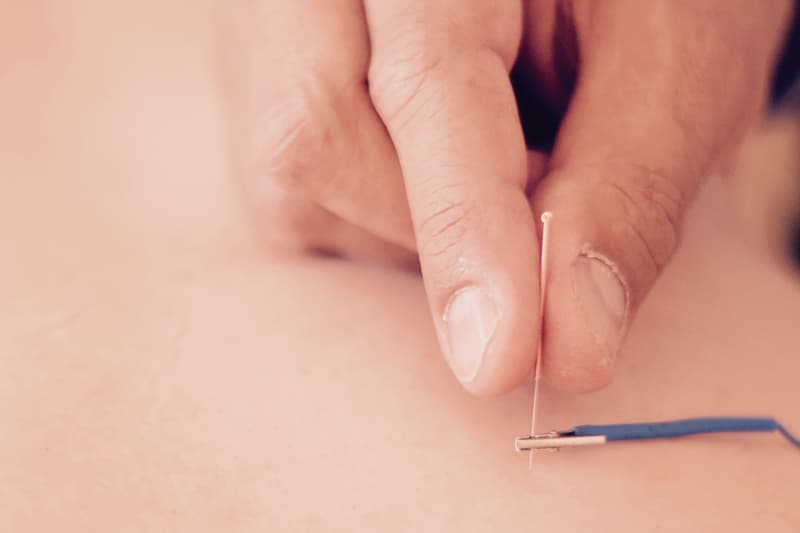 Electroacupuncture in Lleida by Dr. Meler MD