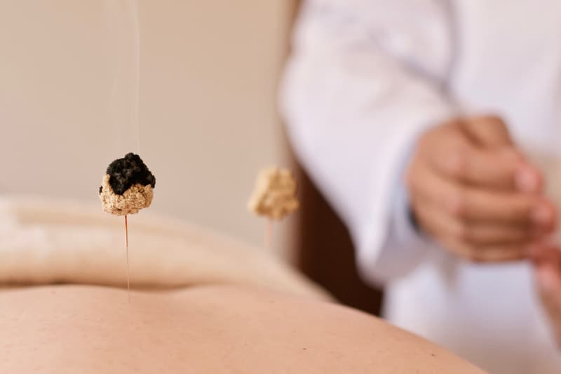 Moxibustion in Lleida by Dr. Meler MD